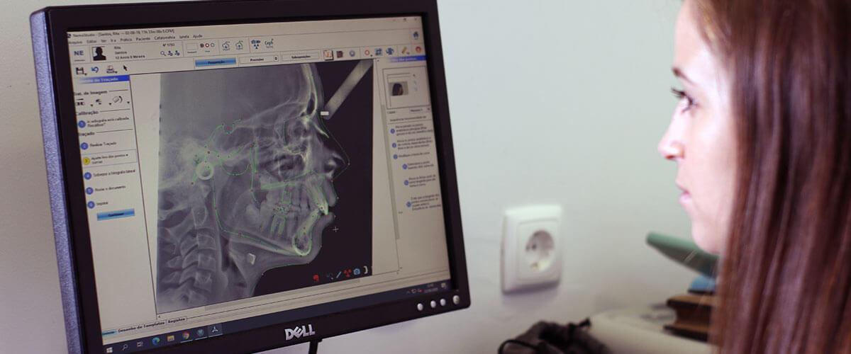 tecnologia-radiografia